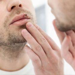 Herpes simplex: Symptome, Bilder, Arten, Behandlung