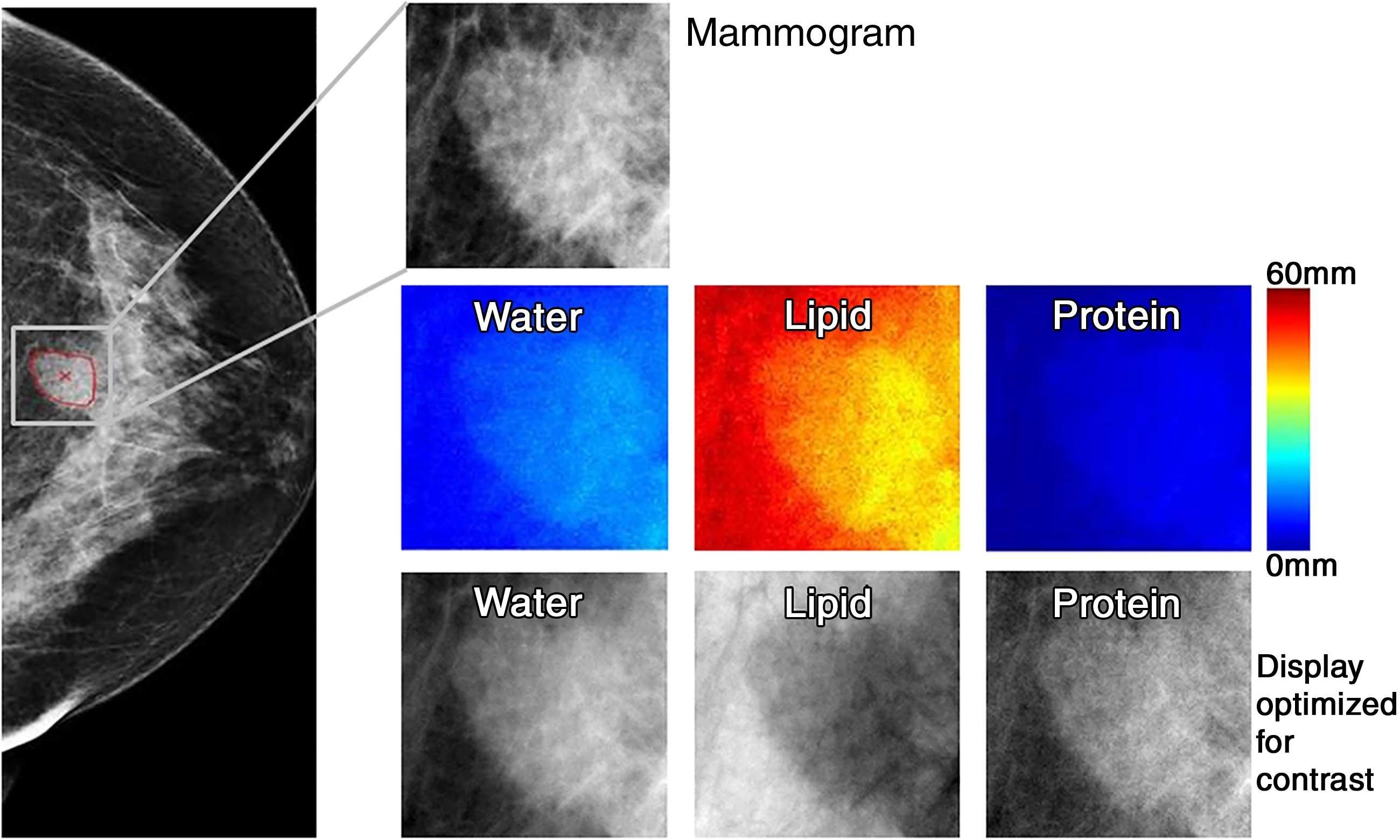 Neuartige Technik, die erheblich zur Verringerung der Brust-Biopsien