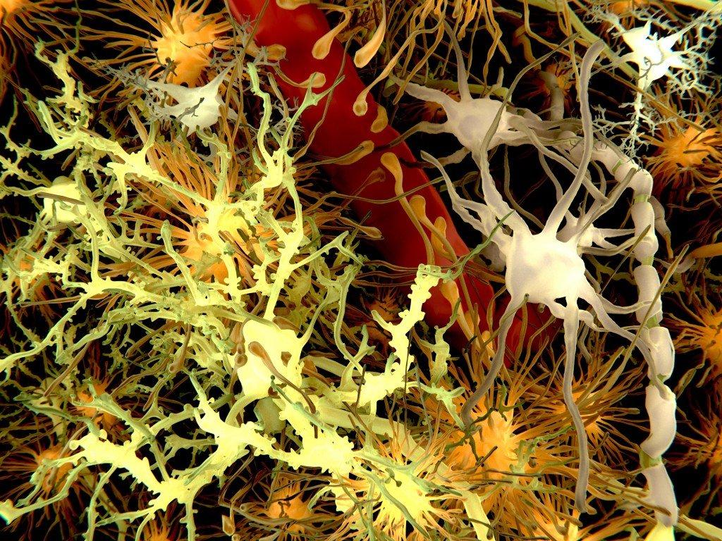 Können Alzheimer-Erkrankungen auch auf andere Menschen übertragen werden?