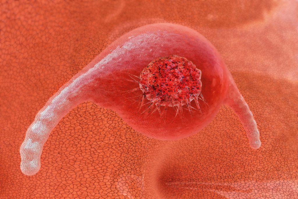 Krebs-Test hat jetzt eine hundertprozentige Erkennungsrate