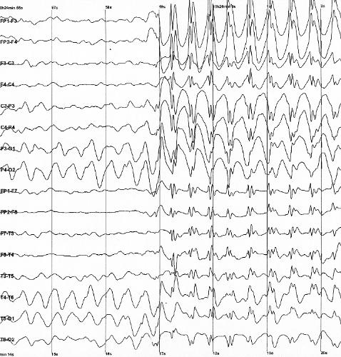 Cannabis-basierte Verbindung kann die Verringerung von Anfällen bei Kindern mit Epilepsie