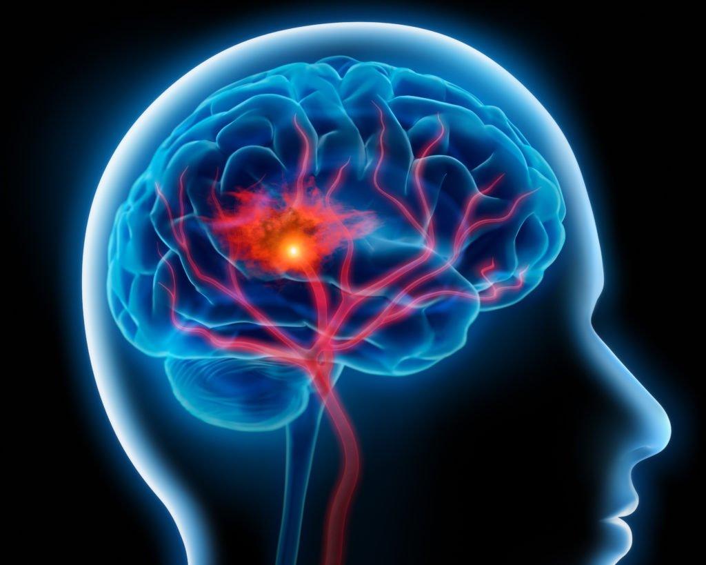 Aktuelle Studie: Bluthochdruck und Rauchen steigern eindeutig die Gefahr von Hirnblutungen