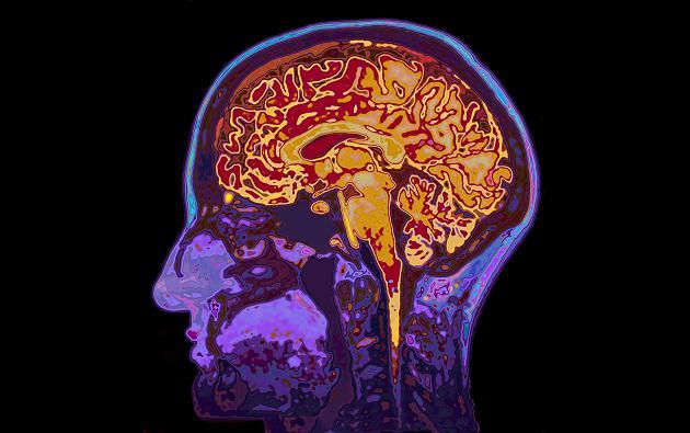 Ehe, Kaffee oder Sport: Sieben Bausteine, die Dein Gehirn vor Demenz schützen