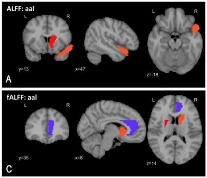 Verbesserte KI-basiertes tool, das erhöht die Genauigkeit der Diagnose Schizophrenie