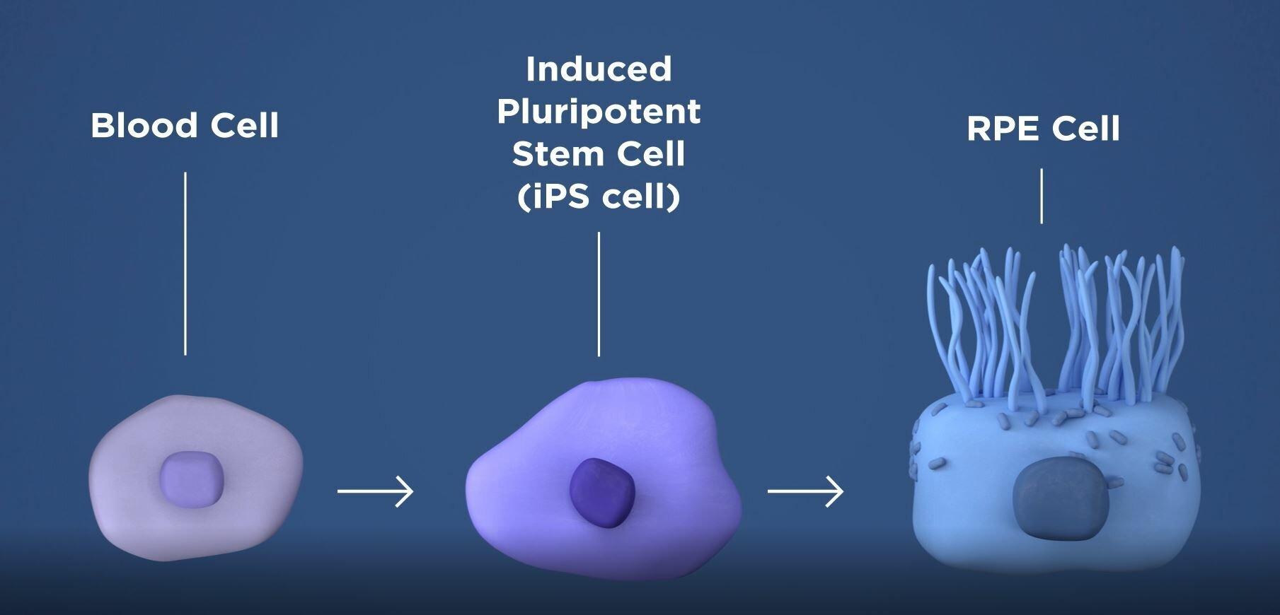 Forscher retten die Rezeptoren, die verhindern, dass Blindheit in Tier-Modellen von AMD