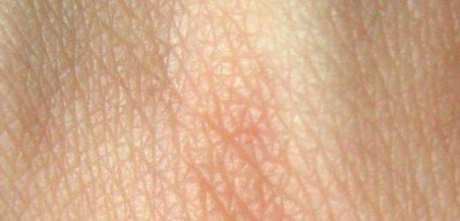 Genetische Studie liefert neue Einsichten in die evolution der Hautfarben