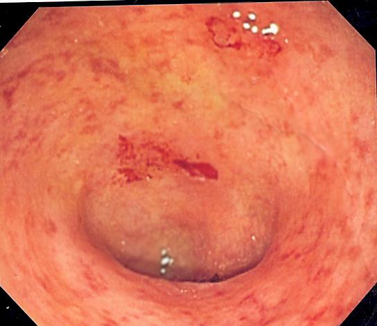 Poo Transplantation eine effektive Behandlung für chronischen Darm-Zustand