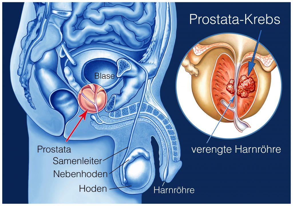 Prostatakrebs: Diese vier Symptome müssen Sie wissen