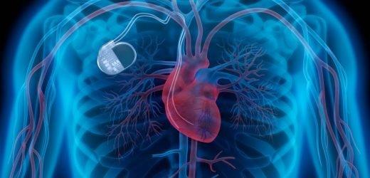 Schrittmacher: Gesundheitsgefahr für Herzpatienten – Medtronic ruft über 150.000 Herzschrittmacher weltweit zurück