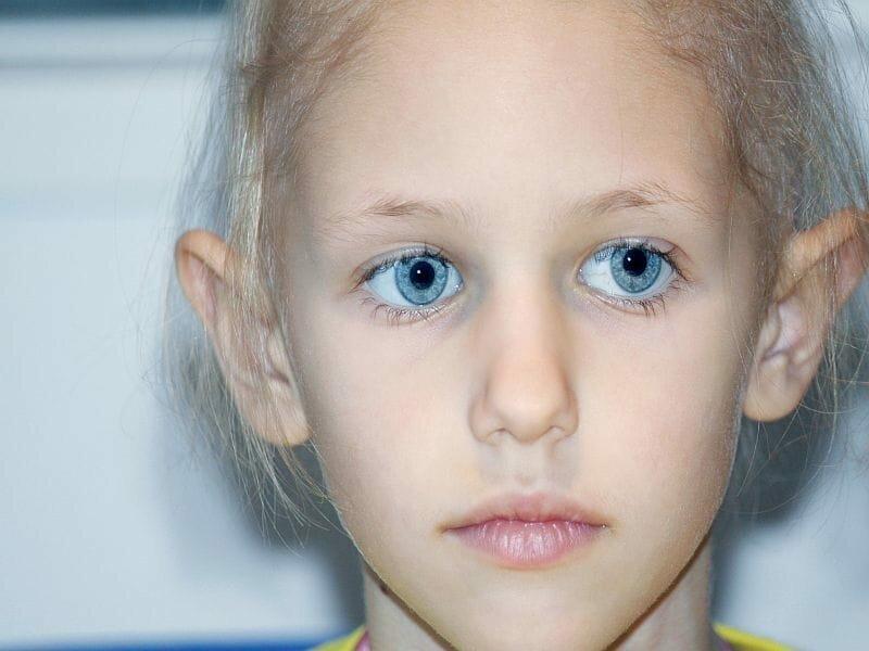 Korpulenz verbunden mit unerwünschten Ereignisse bei Kindern mit Leukämie