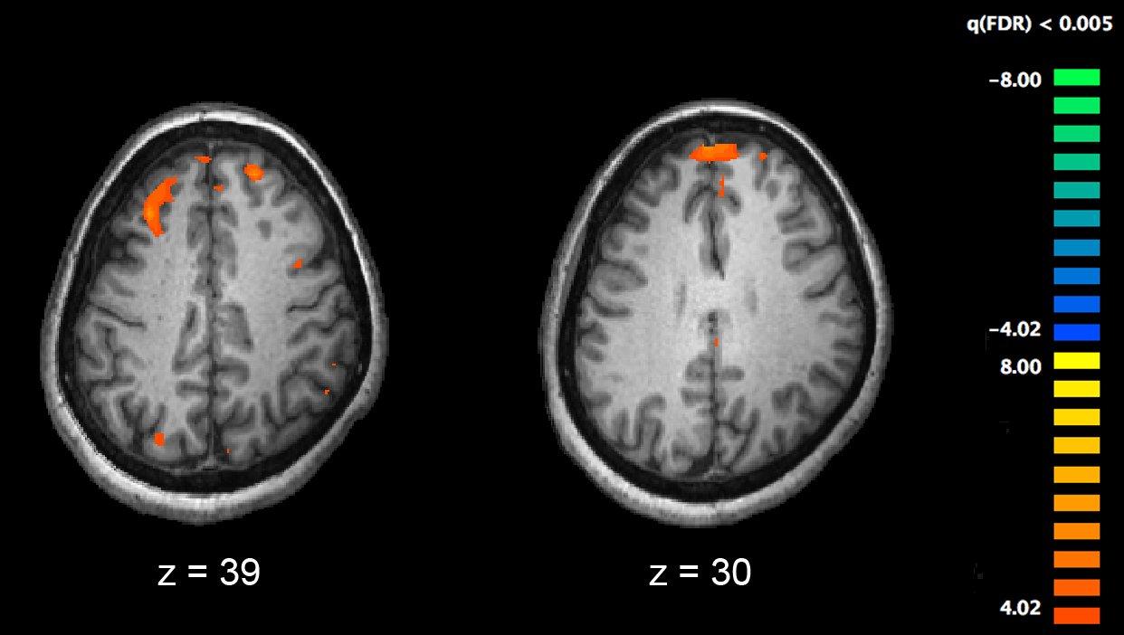 Die Wege der Weisheit in der Schizophrenie