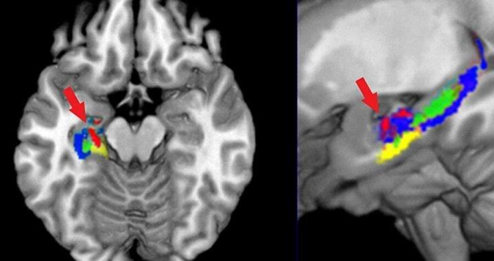 Drei Möglichkeiten, wie das Studium der organischen Chemie Veränderungen des Gehirns