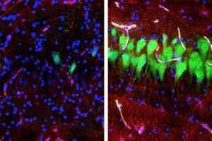 Wissenschaftler wiederherstellen einige Funktionen in a pig ' s brain-Stunden nach dem Tod