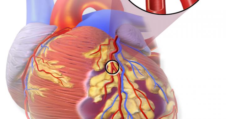 Wieder arbeiten nach einem Herzinfarkt