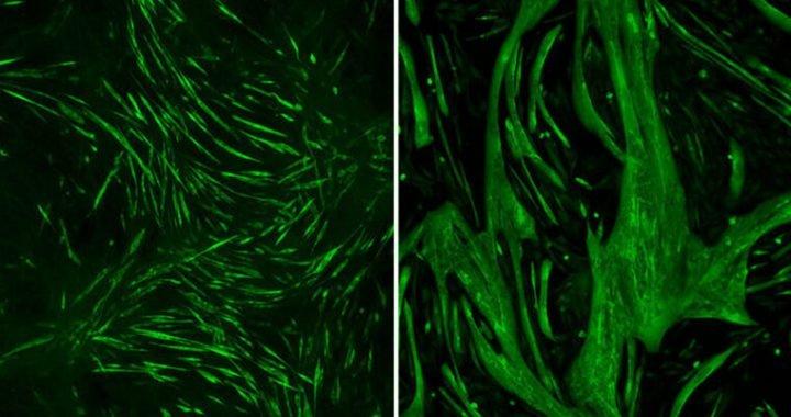 Lithium steigert die Muskelkraft in Mäusen mit seltenen Muskeldystrophie