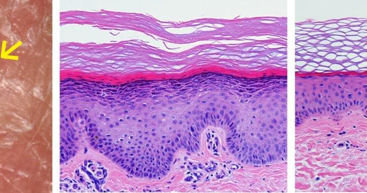 Natürliche Gentherapie von hartnäckigen Haut-Krankheit entdeckt