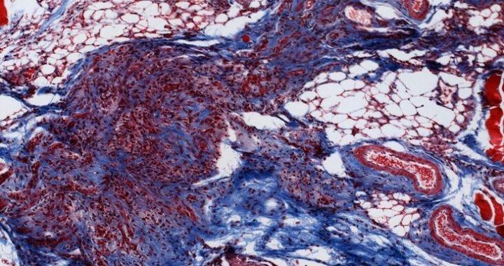 Studie in den Mäusen deckt einen unbekannten Weg für die Brustkrebs-Tumoren zu Rezidiven