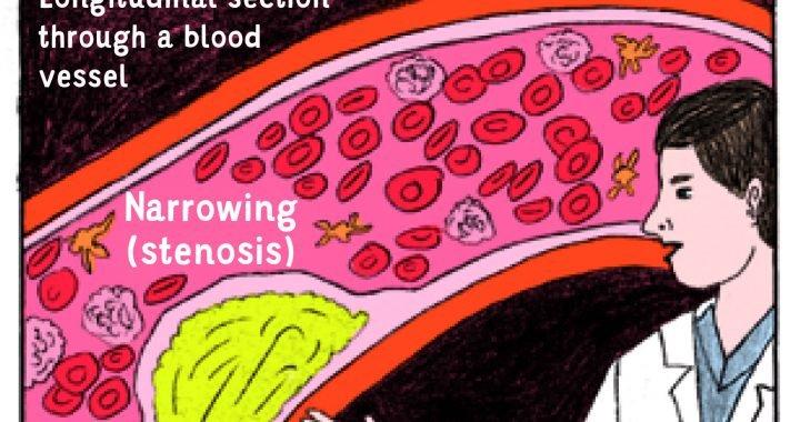 Warum der comic-Stil Informationen besser bei der Vorbereitung der Patienten für den Herzkatheter