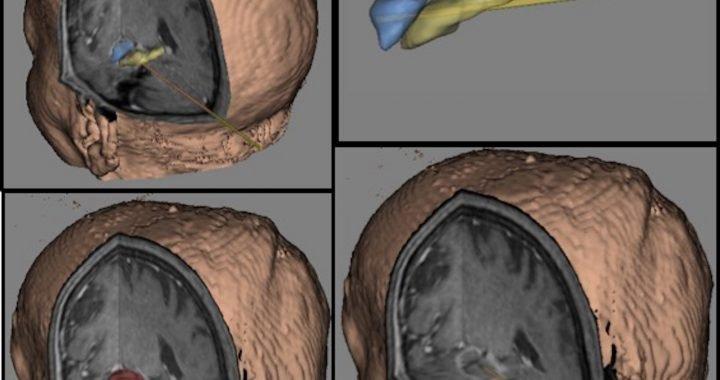 """Was ist die richtige Menge an """"zappen"""" bei Epilepsie-laser-Operation?"""
