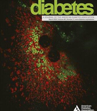 Forscher gewinnen Einblicke in die zellulären Prozesse im Zusammenhang mit diabetes