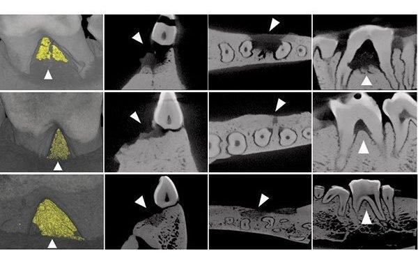 Vielversprechende Behandlung für Parodontitis Zahnfleisch-regeneration