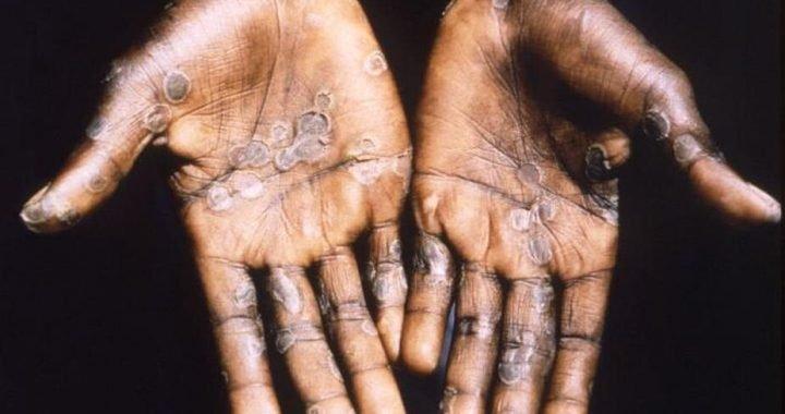 Wir haben nicht eine Heilung für monkeypox virus, aber der Körper kann sich selbst heilen