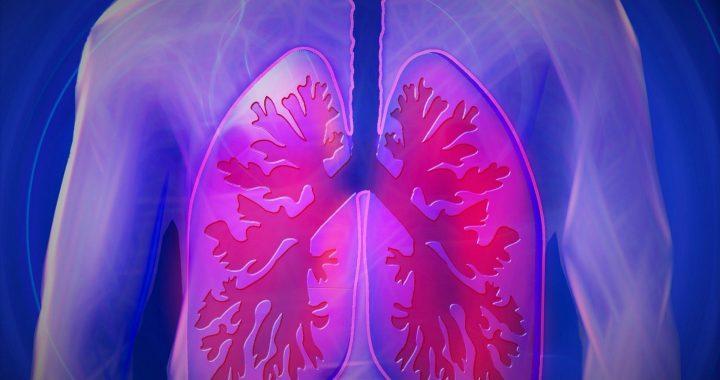 Neue CT-scan-Analyse Voraus, Erkrankung der Atemwege und Tod bei COPD
