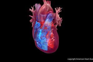 Broken heart Syndrom verbunden mit Krebs