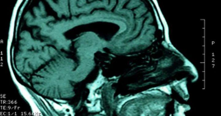 HIV lauert in Rückenmarks-Flüssigkeit verbunden zu denken, Probleme