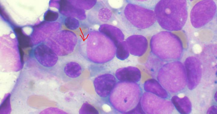 Der große Durchbruch in der Behandlung von Leukämie