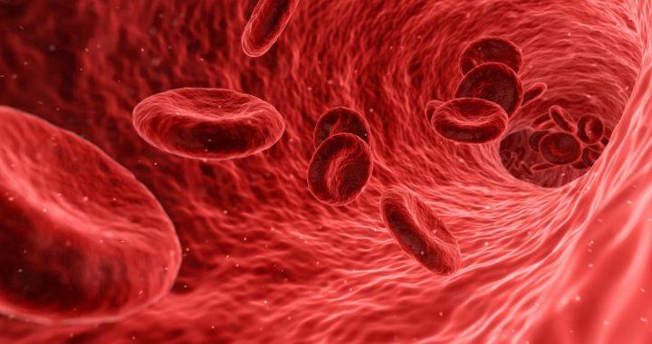 Die Studie bietet einen vielversprechenden Ansatz zur Reduzierung von plaque in den Arterien