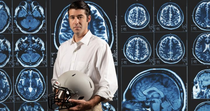 Studie findet routine trifft Fußball spielen zu Schäden am Gehirn
