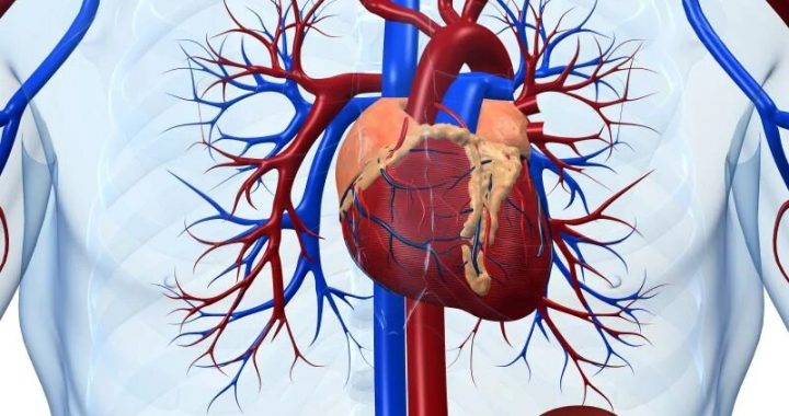 Combo antithrombotische Therapie erhöht Blutungsrisiko