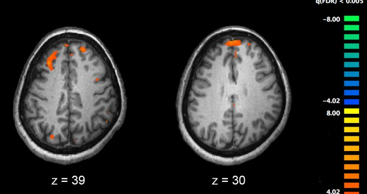 Nahrungsergänzungsmittel können helfen, mit der Schizophrenie