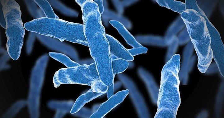 CDC sagt, Menschen können Vertrag Tuberkulose vom Rotwild