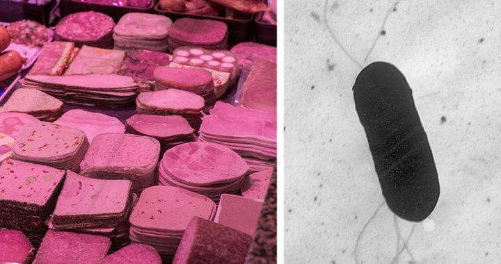 Nach Todesfällen durch verseuchte Wurst: So gefährlich sind Listerien