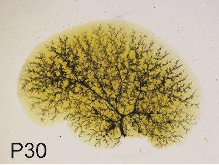Sox9 formt die biliäre Baum in Alagille-Syndrom