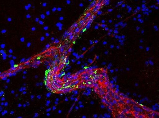 Forscher entdecken protein, das fördert die Gehirn-Metastasen