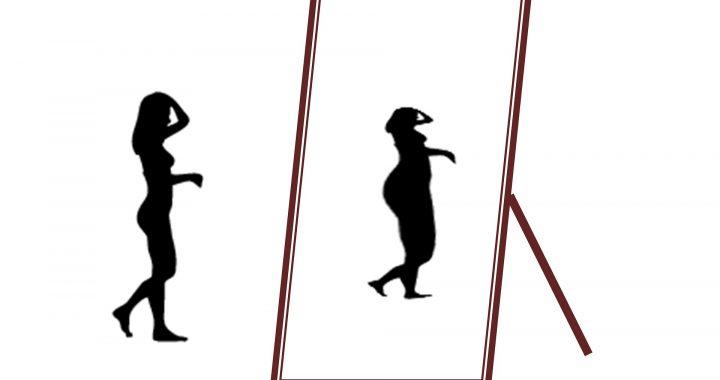 Viele Patienten mit anorexia nervosa, besser zu werden, aber vollständige Genesung ist schwer für die meisten