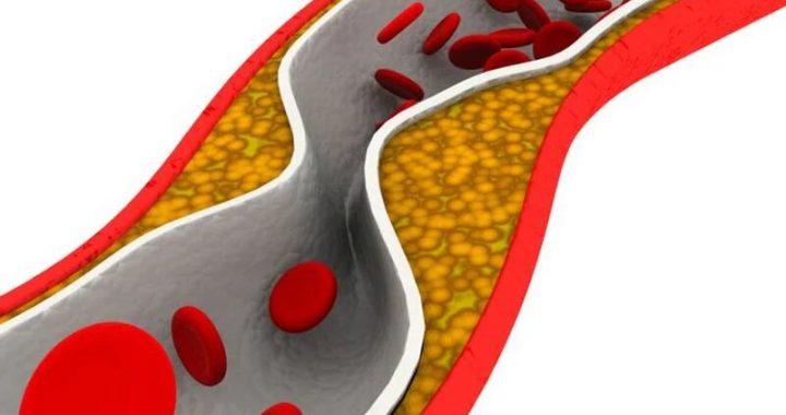 FDA gibt erweiterte Genehmigung zum Rezept Fischöl für Herz-Patienten