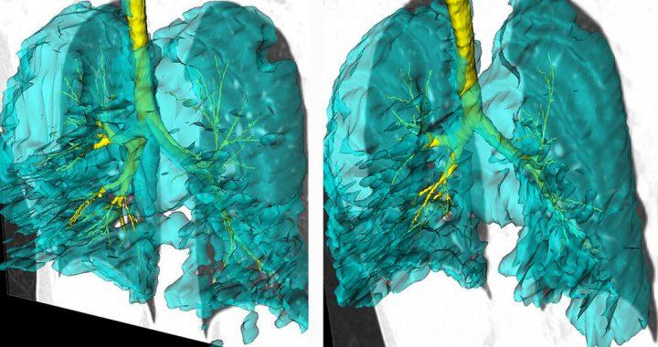 Lungen-Bilder der Zwillinge mit asthma hinzufügen, um Verständnis der Krankheit