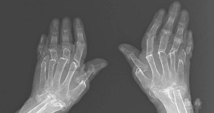 Diese X-Ray von einer Frau, die Teleskop-Finger Zeigt die Schmerzhafte Realität des Lebens Mit Rheumatoider Arthritis