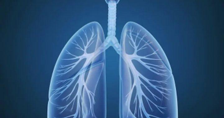 Bericht schätzt, der Rückübernahme, der Tod nach vaping Krankheit Entladung