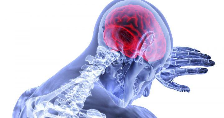 """Studie identifiziert die 'Trigger', die Form von Schlaganfallpatienten """" emotionale Anpassungsfähigkeit"""
