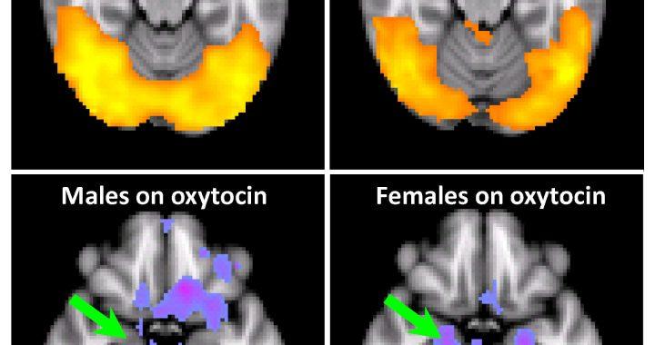 Chemikalien zwischen uns: Überraschende Wirkungen von oxytocin auf Kokain-sucht
