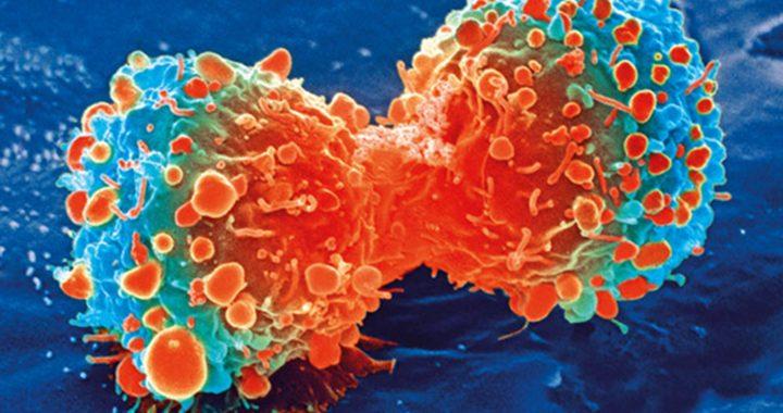 Östrogen kann erleichtern, das Wachstum von Leber-Metastasen in nicht-geschlechtsspezifischen Krebsarten