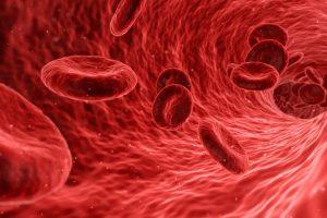 Studie findet Zusammenhang zwischen blutfetten und Arterie Größe bei Menschen mit MS