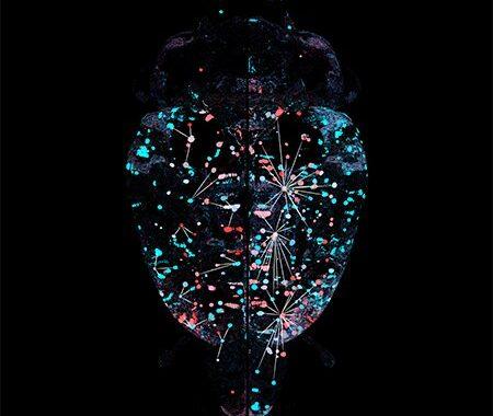 In Mäusen, in Abhängigkeit von Alkohol Ergebnisse in Gehirn-weite Umbau der funktionalen Architektur