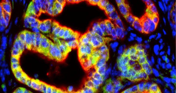 Pankreas-Krebs-Zellen sezernieren signal, dass sabotiert immun-Angriff auf Tumoren