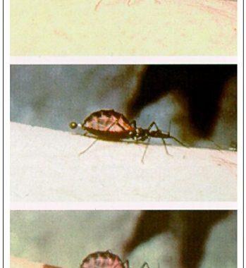 Setzen vernachlässigten tropischen Krankheiten in den Fokus: Lehren aus der Chagas-Krankheit